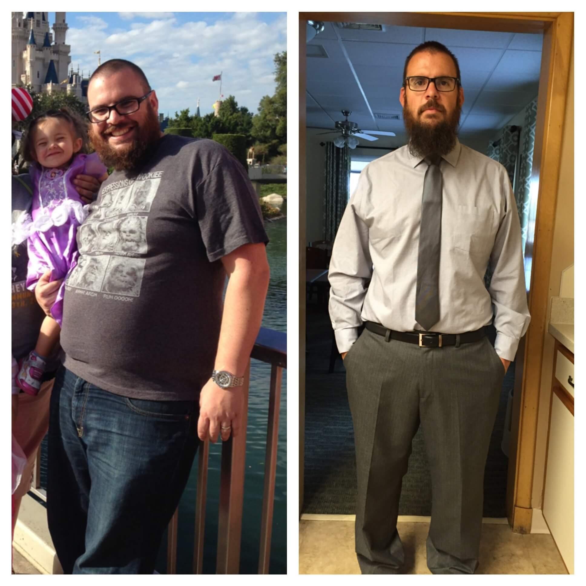 Thomas Medeiros Lost Over 70 lbs